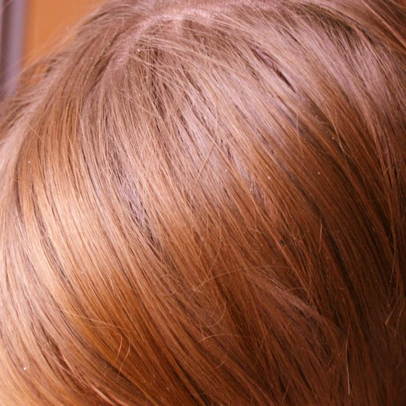 Swędzenie skóry głowy – proste sposoby, które NAPRAWDĘ pomogą!