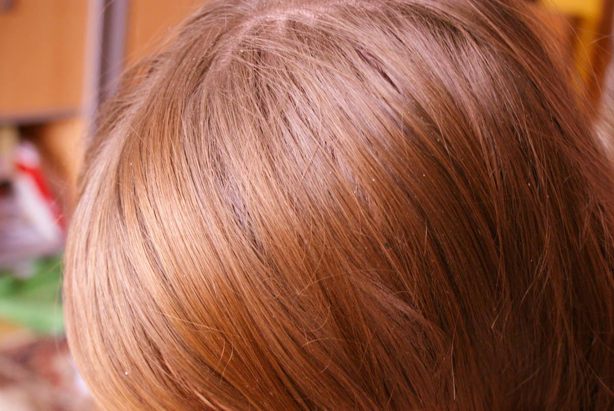 Swędzenie skóry głowy domowe sposoby