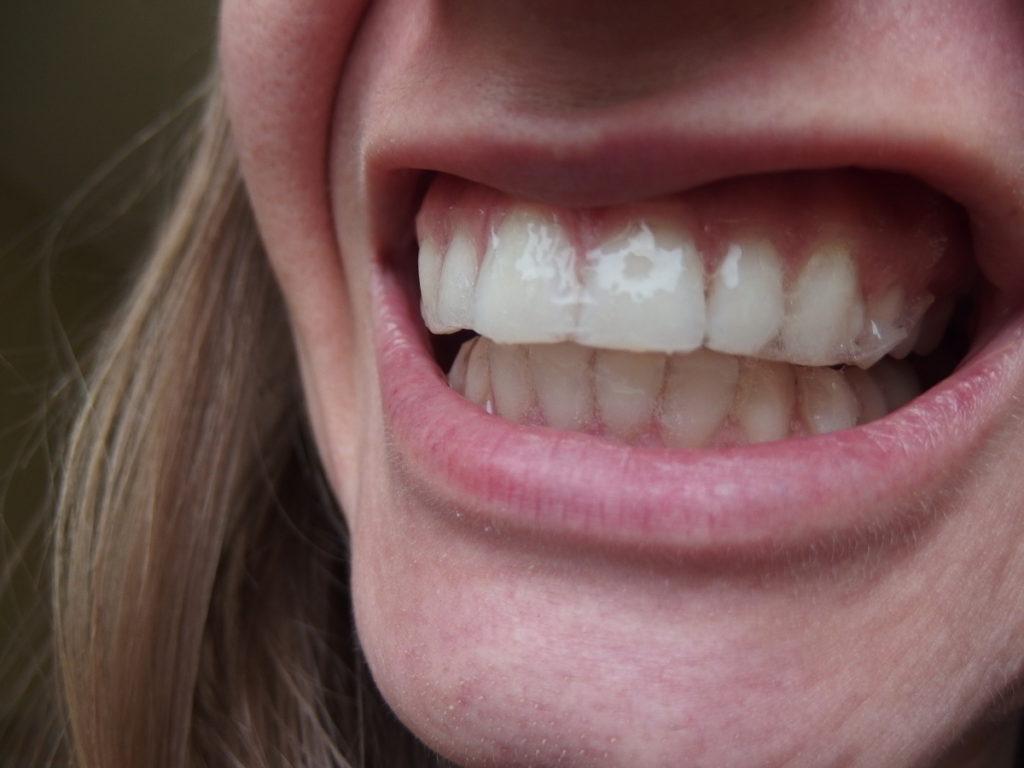 Jak wybielić zęby paskami?