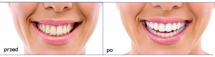 Paski wybielające zęby efekty