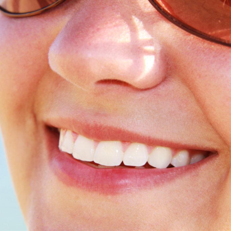 Jak wybielić zęby w jeden dzień? [MEGA PORADNIK] mówimy jak!