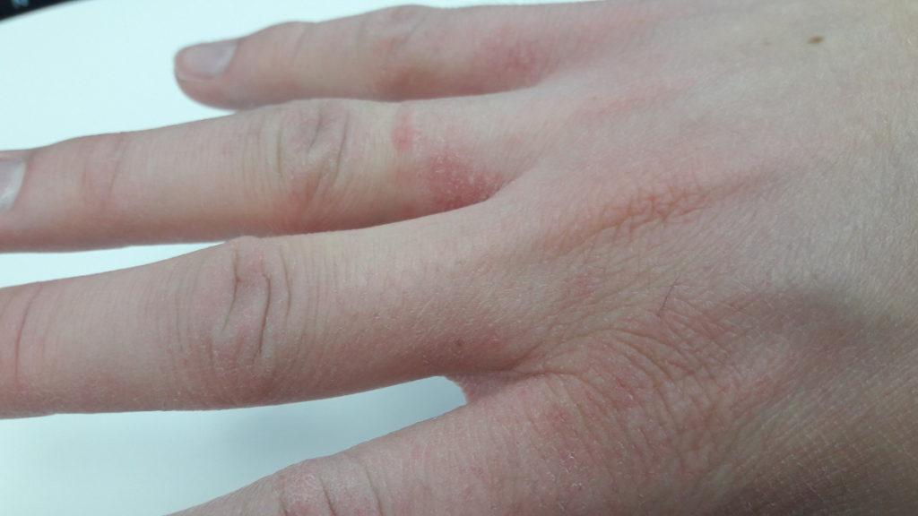 Zniszczone dłonie od detergentów