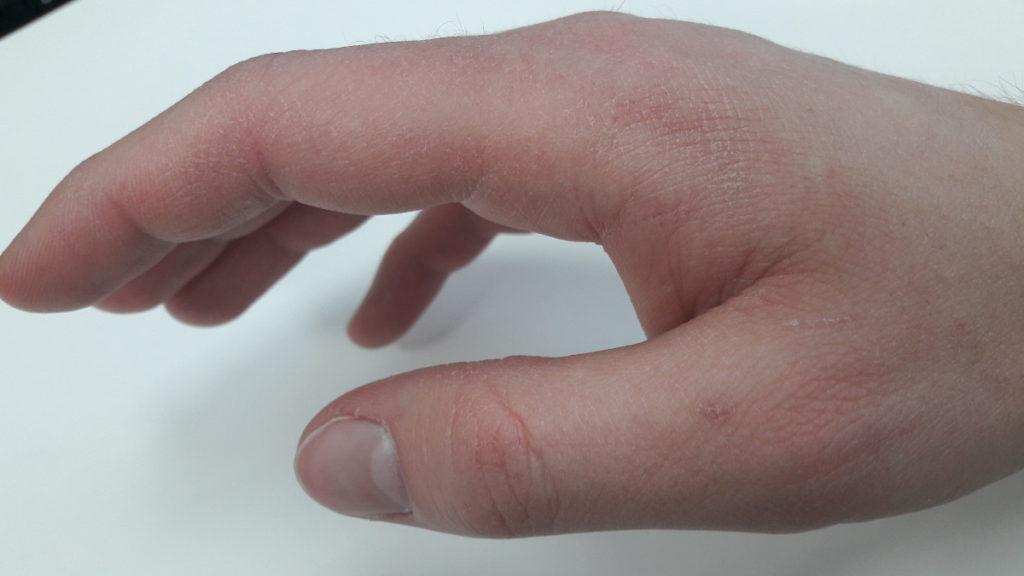 Zniszczone dłonie od wody