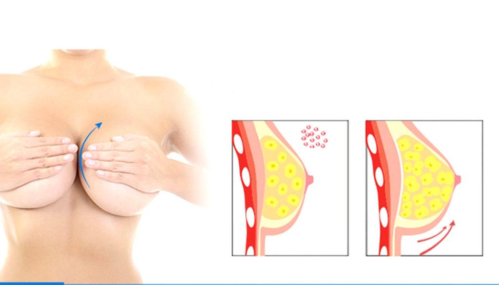 Krem powiększający piersi efekty