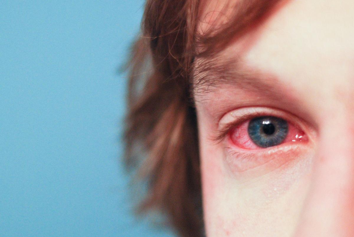 Uczulenie na kosmetyki do oczu