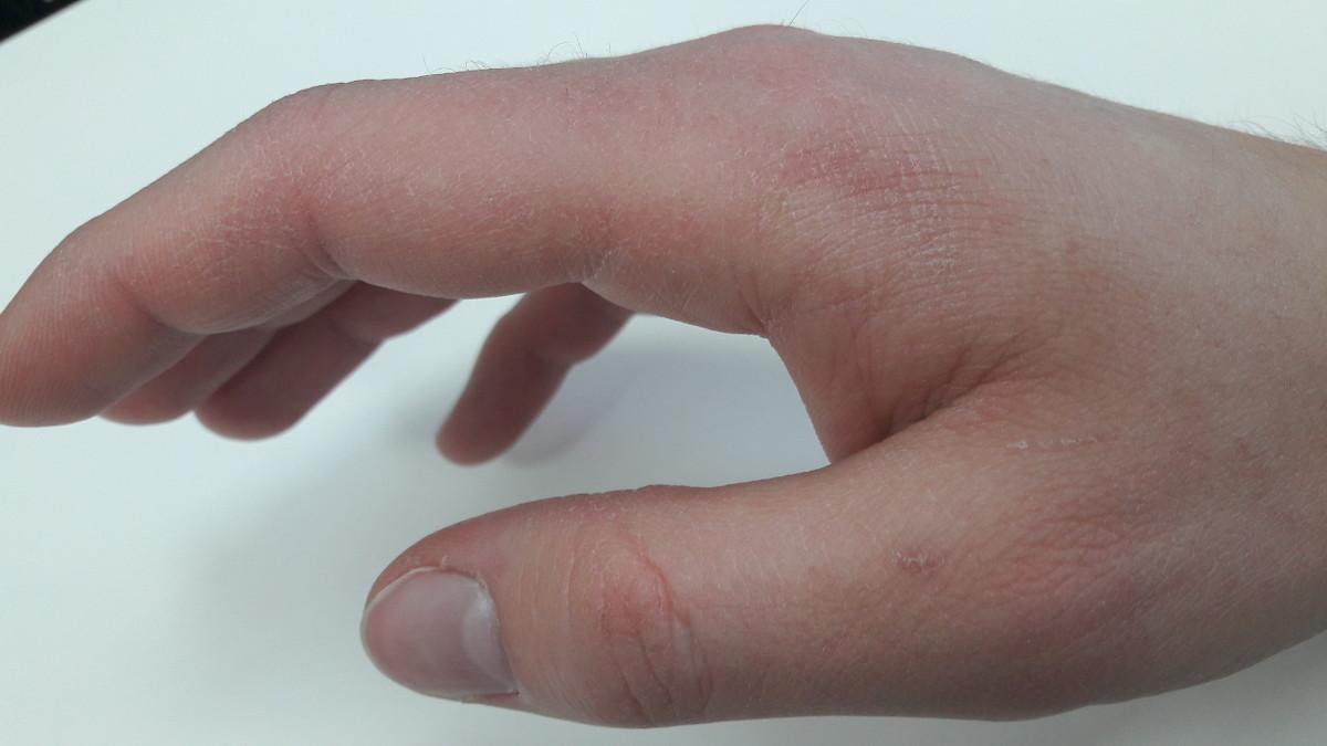 Swędzenie skóry po kąpieli – przyczyny upierdliwego świądu [BIBLIA WIEDZY]!