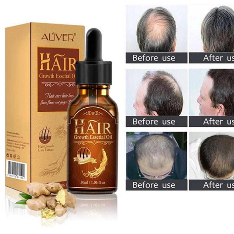 Zestaw na porost włosów dla mężczyzn – JEDYNY taki [SKLEP]!